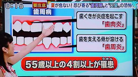 夏バテによる歯周病の原因と予防法7