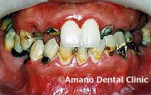 ひどい虫歯の治療前33歳男性