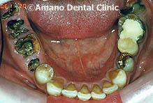 ひどい虫歯の治療前42歳女性