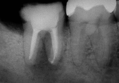 歯科セカンドオピニオン36歳男性治療後