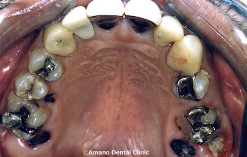 口臭の治療38歳女性(東京都)治療前