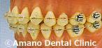 歯の強化痛くない虫歯歯周病治療矯正