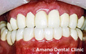 ひどい虫歯治療後1