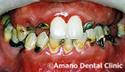 ひどい虫歯治療前1
