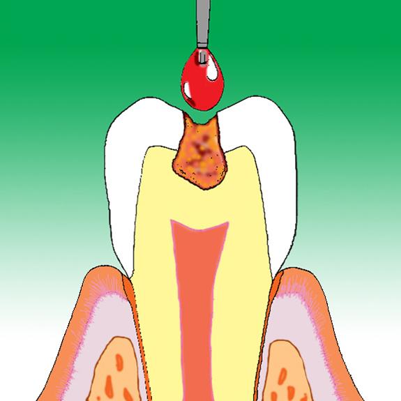 歯を削らない虫歯治療カリソルブ治療前