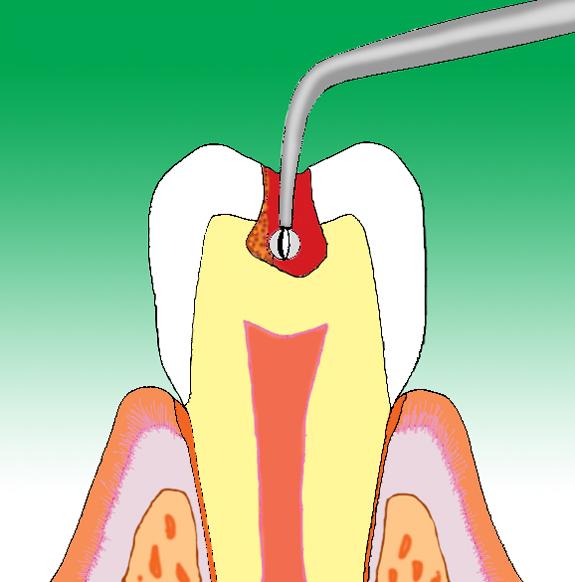 歯を削らない虫歯治療カリソルブ治療中