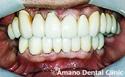 歯槽膿漏治療後
