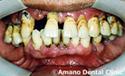 歯槽膿漏治療前