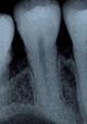 歯の神経を抜かない治療法/歯の神経を取らない治療法写真