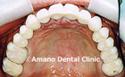 ひどい虫歯治療後2