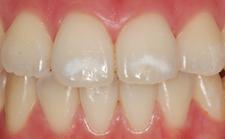 歯の白い斑点(ホワイトスポット)治療エナメル質形成不全治療中3