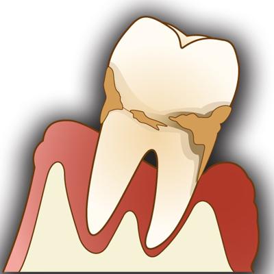 歯槽膿漏の原因重度