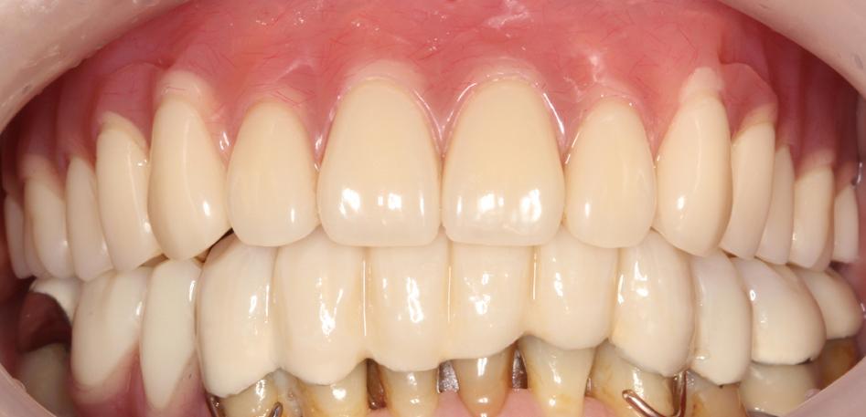 歯を削らない噛み合わせ治療後