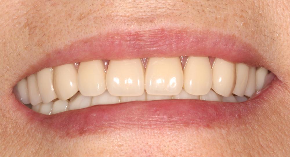 歯を削らない噛み合わせ治療後口元