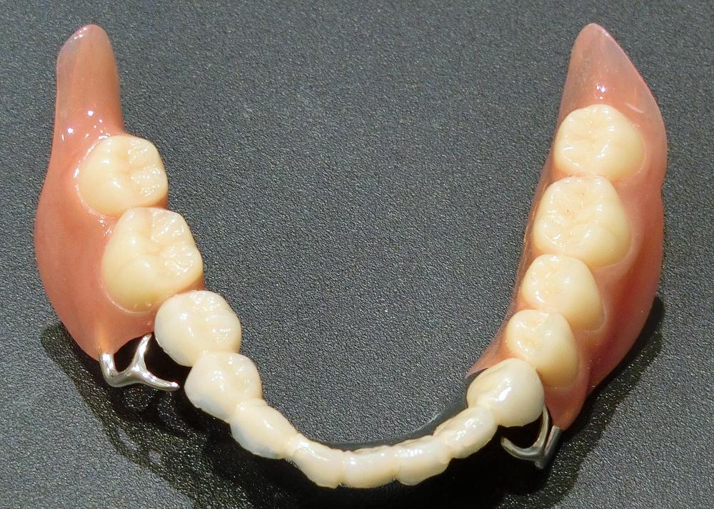 歯を削らない噛み合わせ治療義歯
