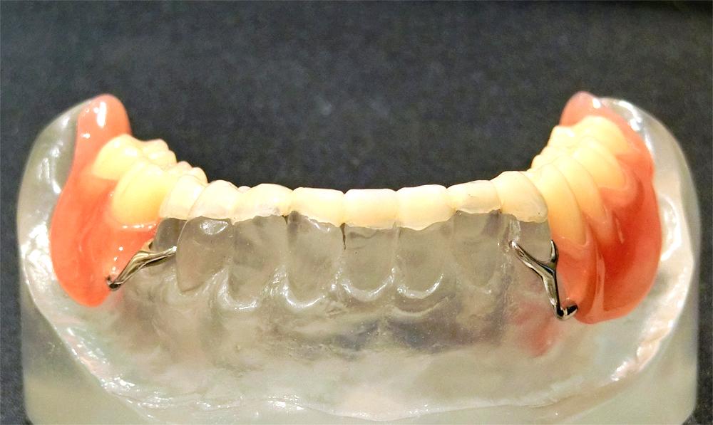 歯を削らない噛み合わせ治療後模型
