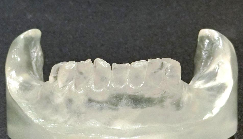歯を削らない噛み合わせ治療前模型