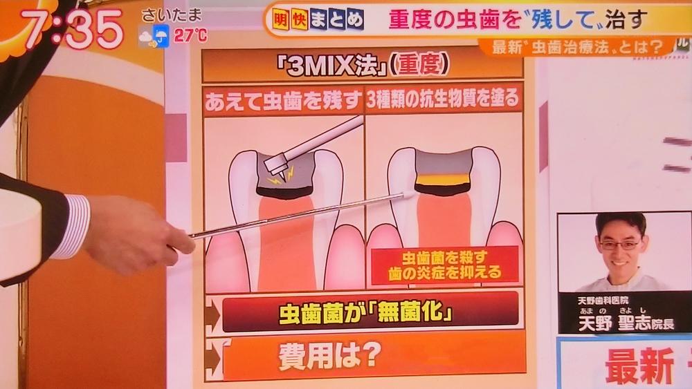 歯を削らない痛くない重度の虫歯治療