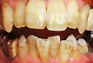着色除去歯磨き粉使用前2