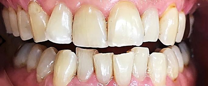 着色除去歯磨き粉使用後1