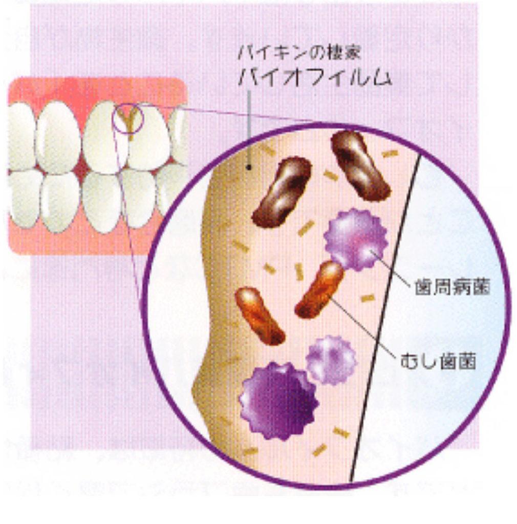 歯周病菌虫歯菌厚労省認可殺菌水歯垢