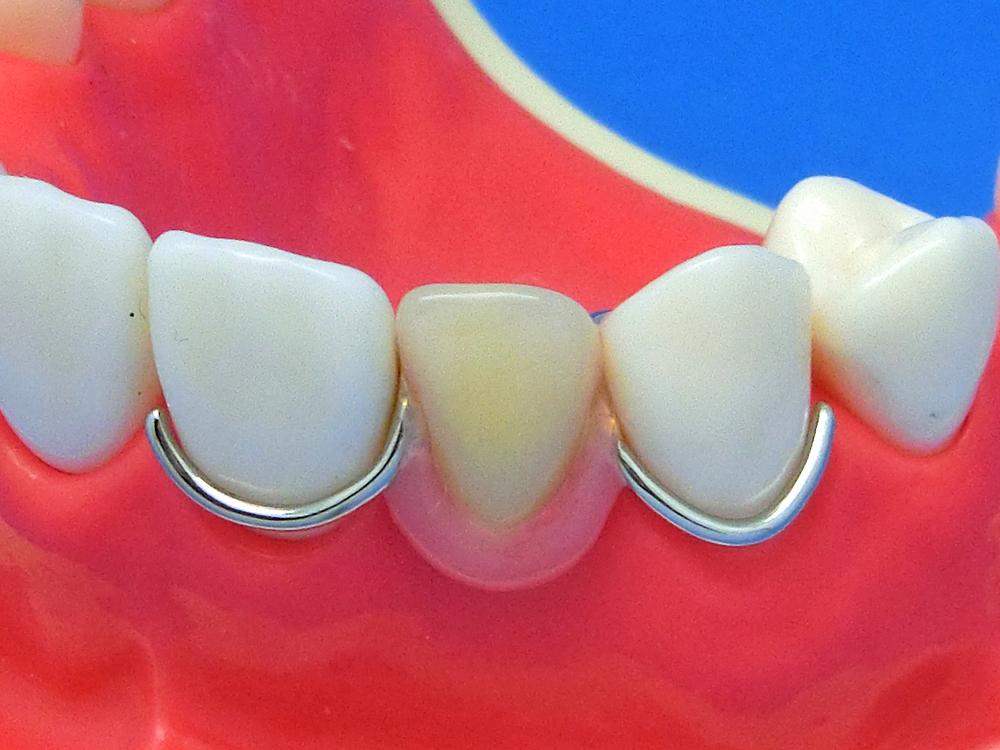 歯を削らないブリッジ3DRバネ比較