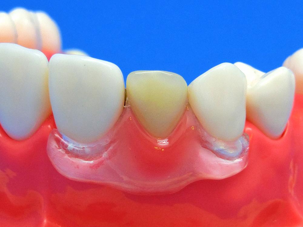 歯を削らないブリッジ入れ歯バネ