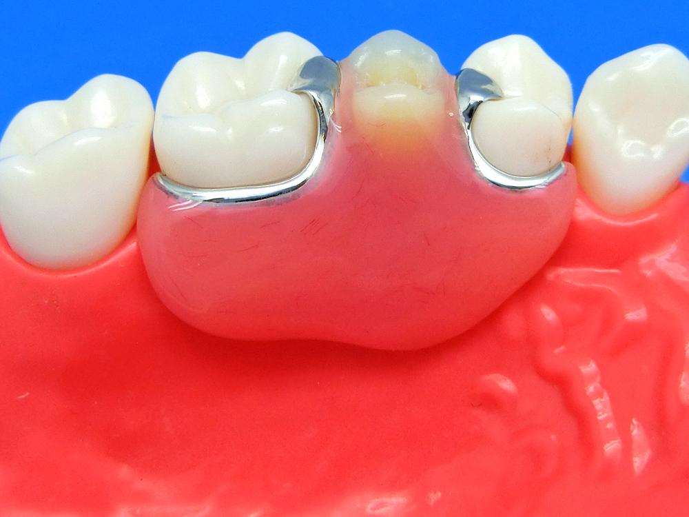 歯を削らないブリッジ3DR義歯比較