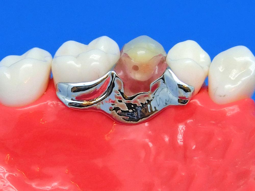 違和感のない入れ歯奥歯金属