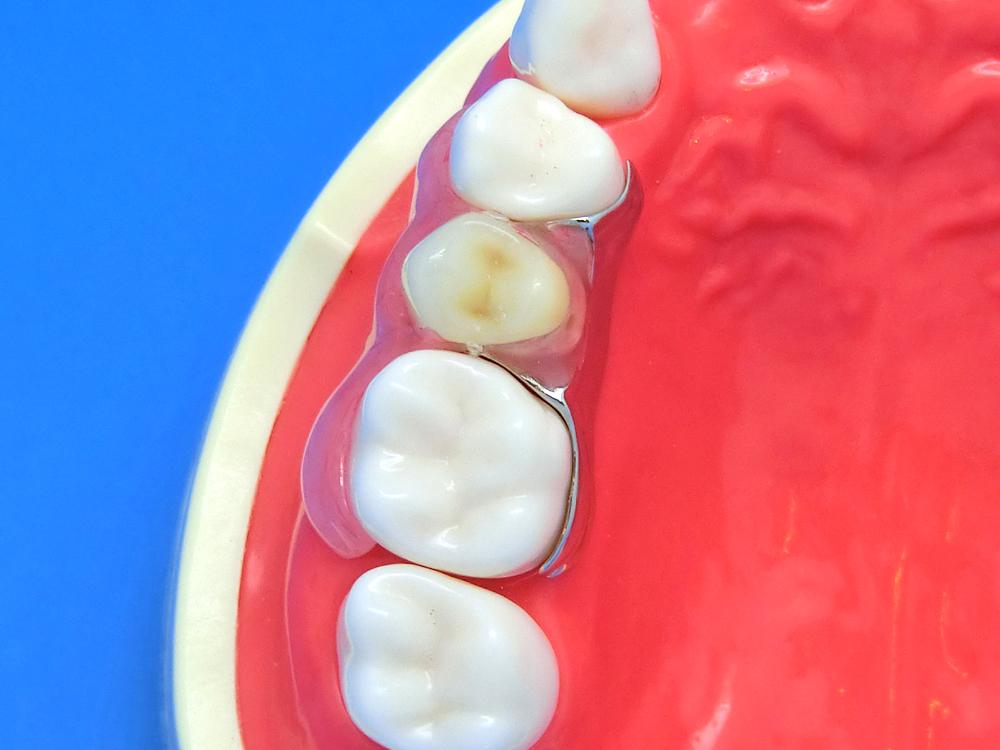 歯を削らないブリッジ入れ歯奥歯