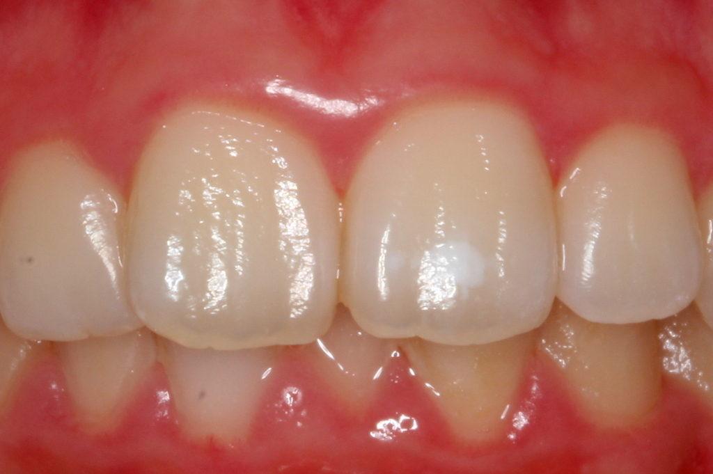 歯の白い斑点(ホワイトスポット)治療エナメル質形成不全治療前