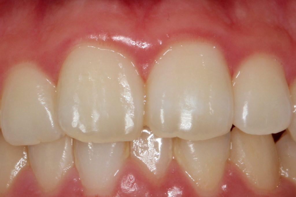 歯の白い斑点(ホワイトスポット)治療エナメル質形成不全治療後
