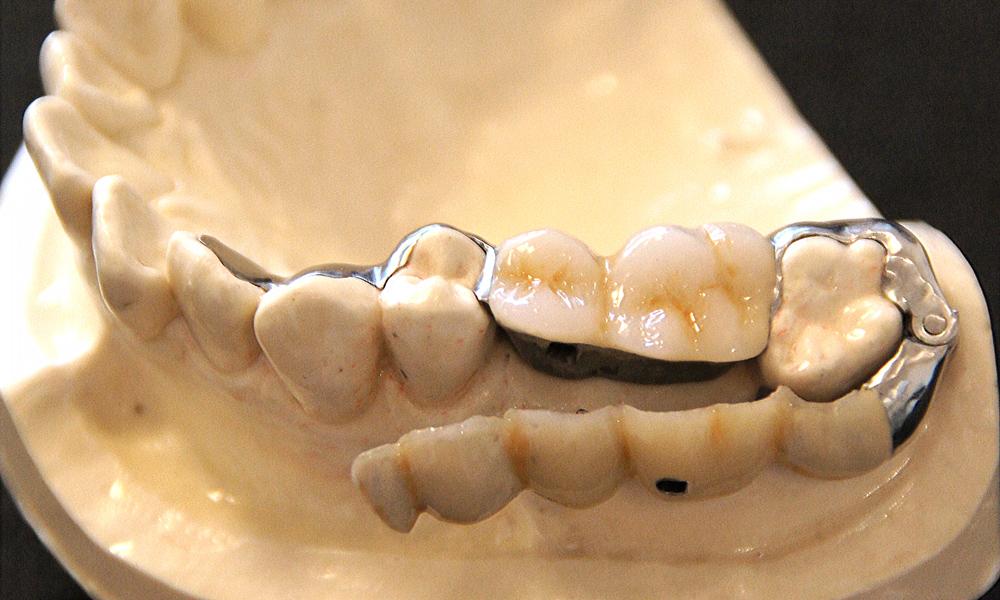 歯を削らないブリッジ3DR模型
