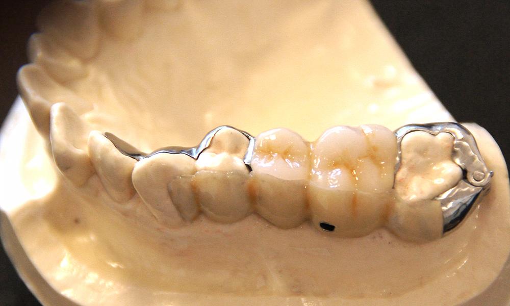 歯を削らないブリッジ3DR利点