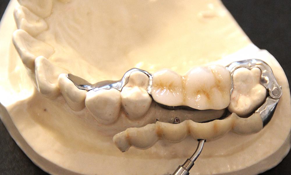 歯を削らないブリッジ3DR外し方