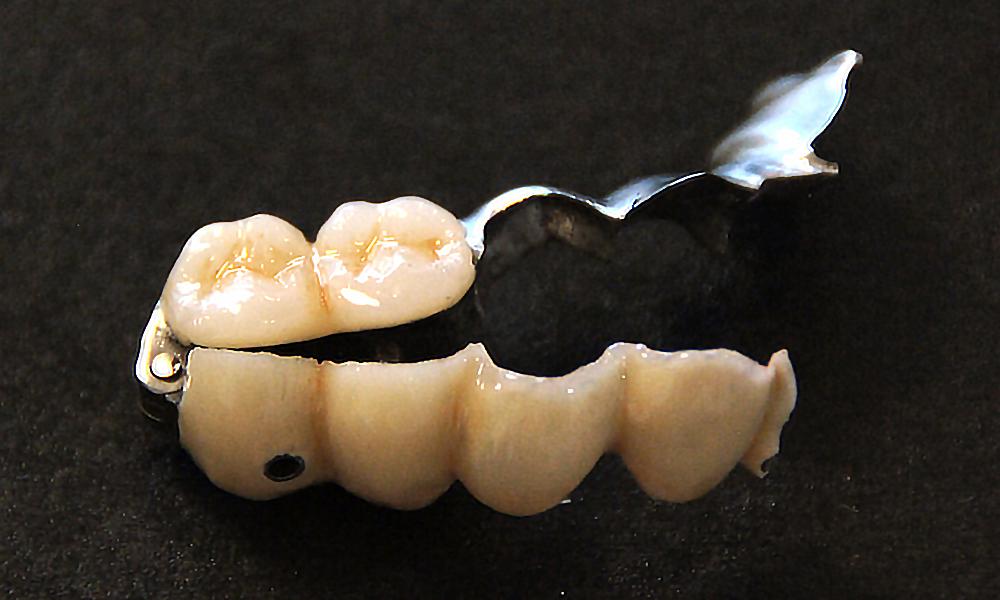 歯を削らない骨を削らないブリッジ3DR