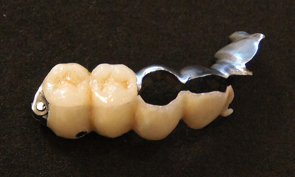 歯を削らない異物感の無いブリッジ3DR