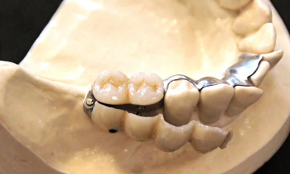 歯を削らないしっかり噛めるブリッジ3DR