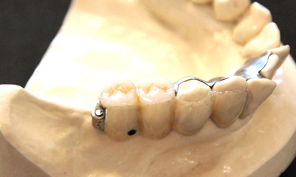 歯を削らない歯茎が無いブリッジ3DR