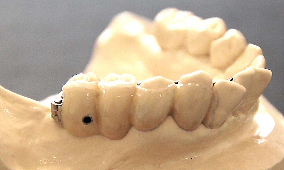歯を削らないバネが無いブリッジ3DR