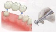 歯を削らないブリッジ3DR比較