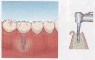 歯を削らないブリッジ3DRインプラント比較